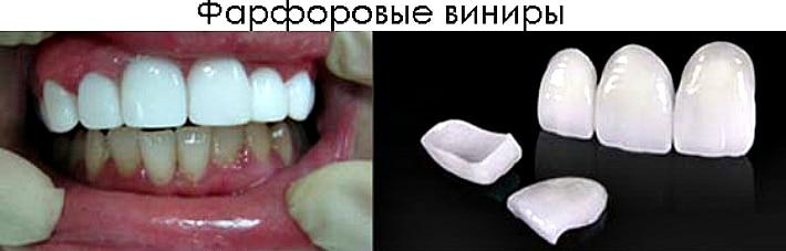 Стоматологические виниры для коррекции зубов