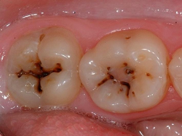 Что нужно знать о глубоком зубном кариесе