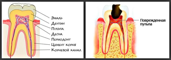 Изображение здорового и поврежденного зуба
