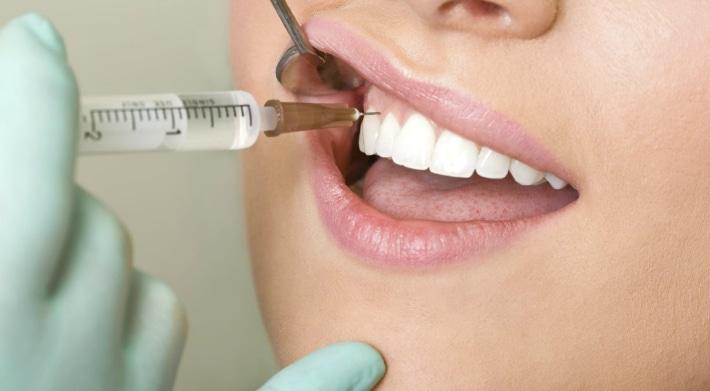 Местная анестезия при лечение зубов