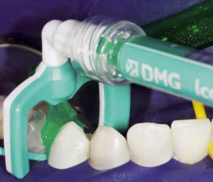 Использование технологии Icon в стоматологии