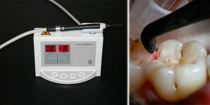 Лечения зубов лазером
