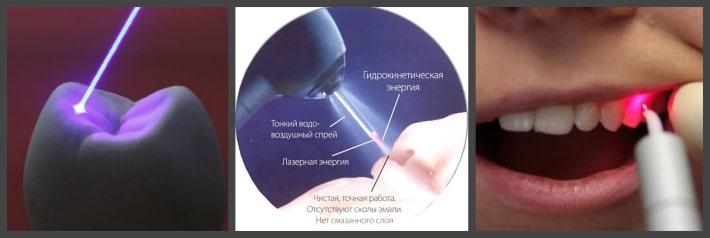 Лечение среднего и глубокого кариеса лазером.