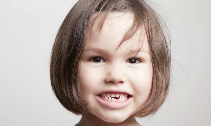 Лечение кариеса молочных зубов у ребенка
