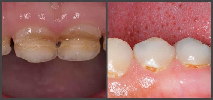 Вида кариозного поражения детских зубов