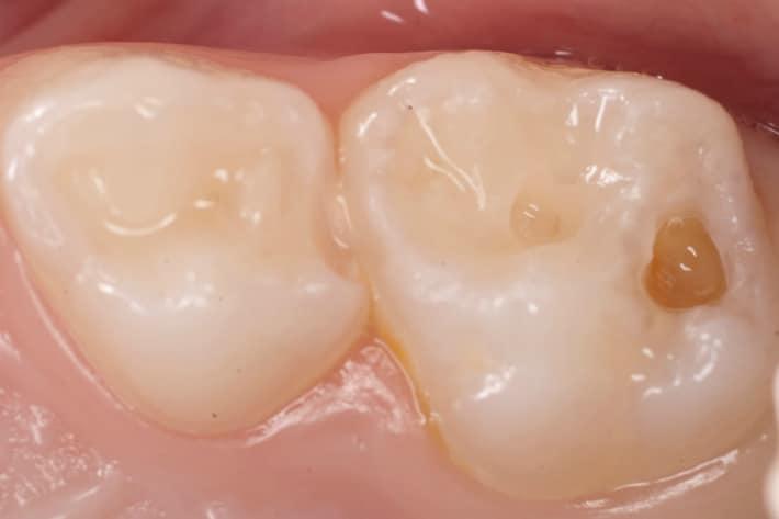 Лечение кариеса на зубах в домашних  условиях