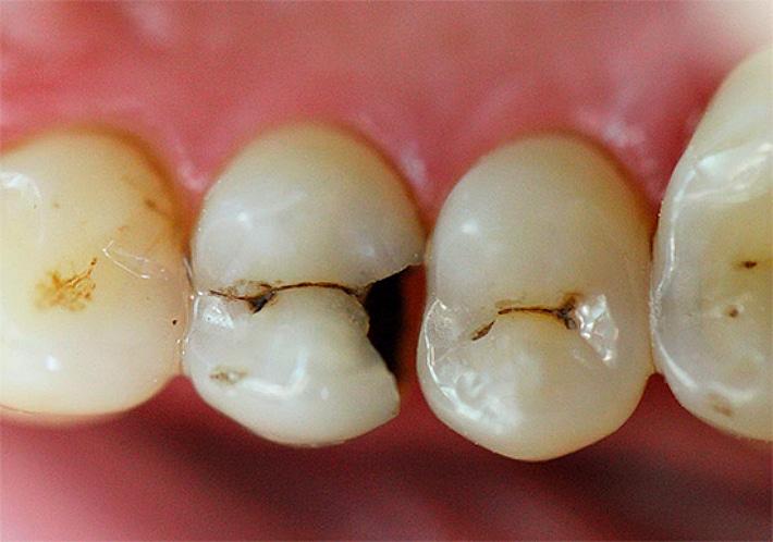 Доступная цена на лечение кариеса в Москве! Современные методы лечения кариеса зубов в Дентал про