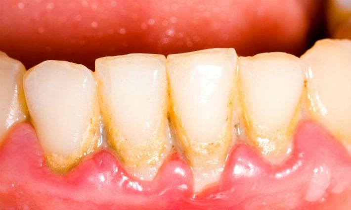Скопление кариозных бактерий на зубах.