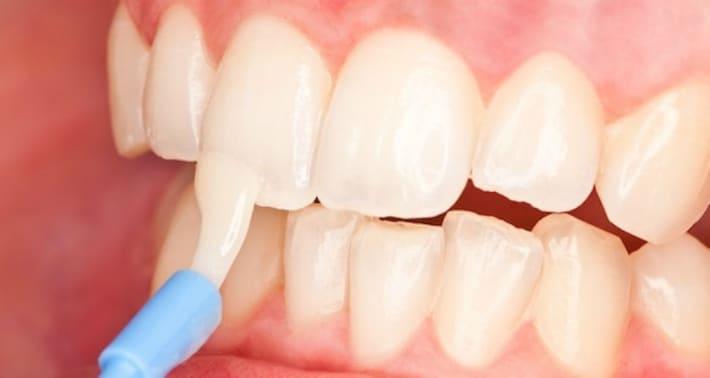 Ренинизализация зубной эмали