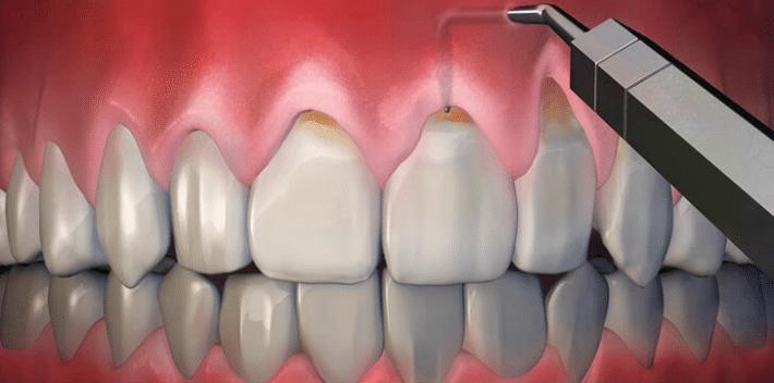Хирургическое лечение оголение шейки зуба