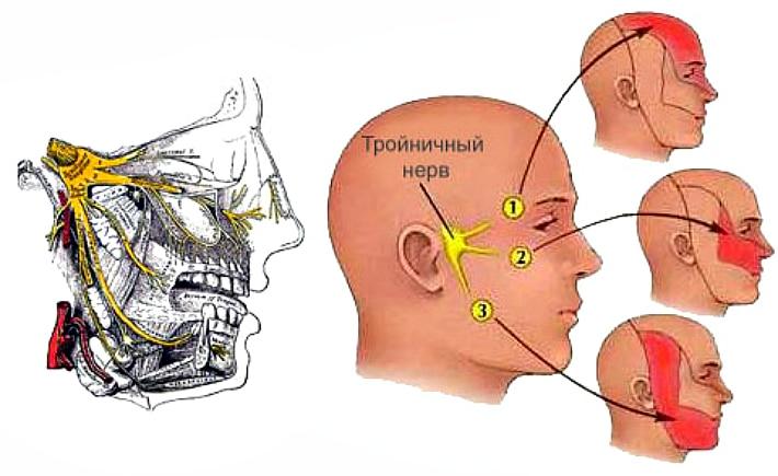 Пульпит и троичный нерв