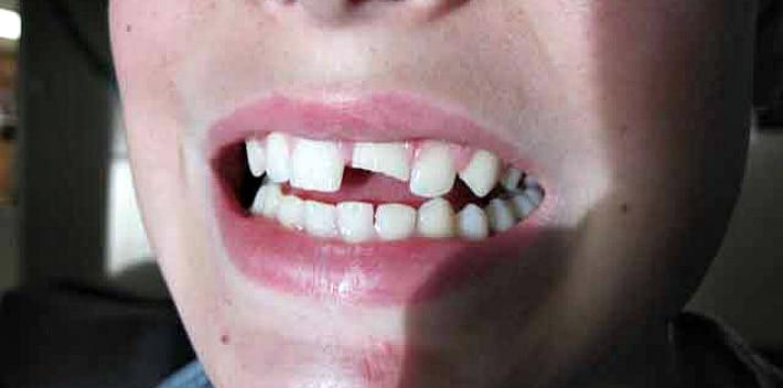 Травматический пульпит как результат скола зуба
