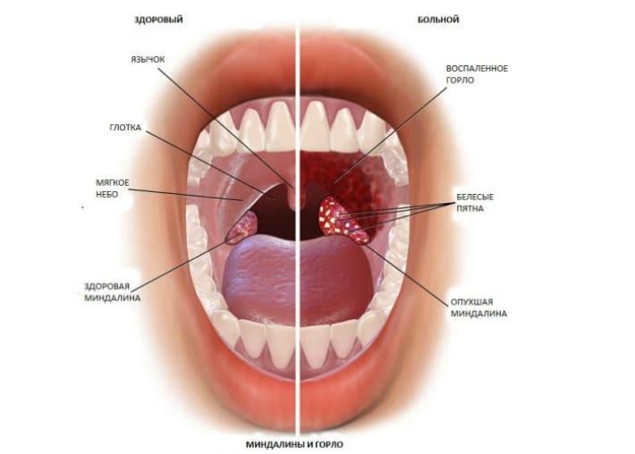 Здоровое и больное состояние горла