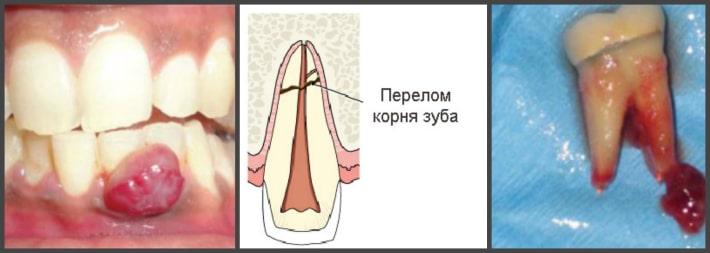 Осложнения при перфорации зуба