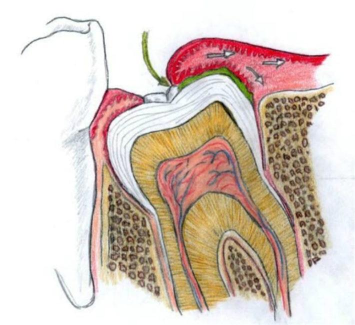 Воспаление тканей десны
