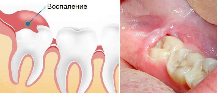 выборе когда начинают вылазить зубы мудрости больно ли составить первоначальное