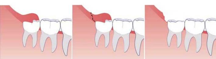 Процесс иссечения слизистого или слизисто-надкостничного капюшона
