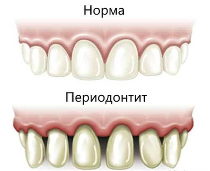 Изображение зубов при периодонтите