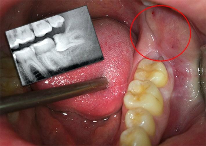 Боль при росте зуба мудрости