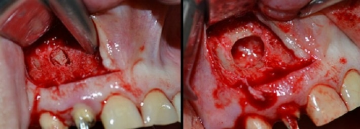 Цистэктомия в стоматологии