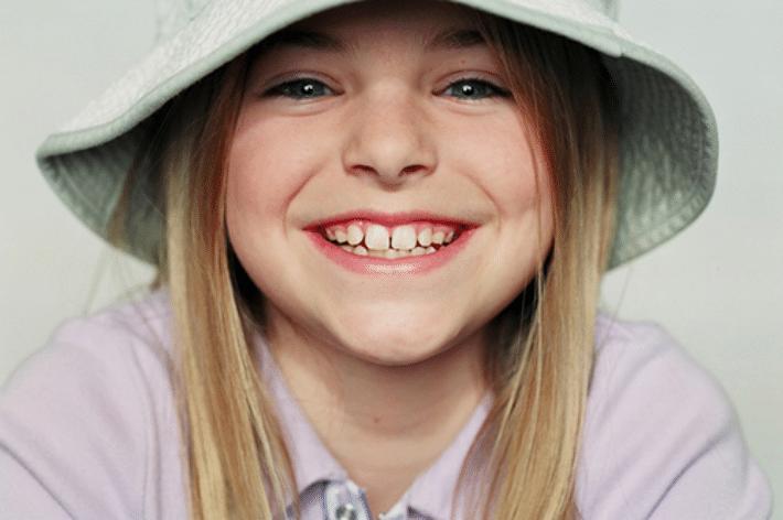 Лечение тремы зубов