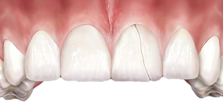 Трещина приведет к потере зуба