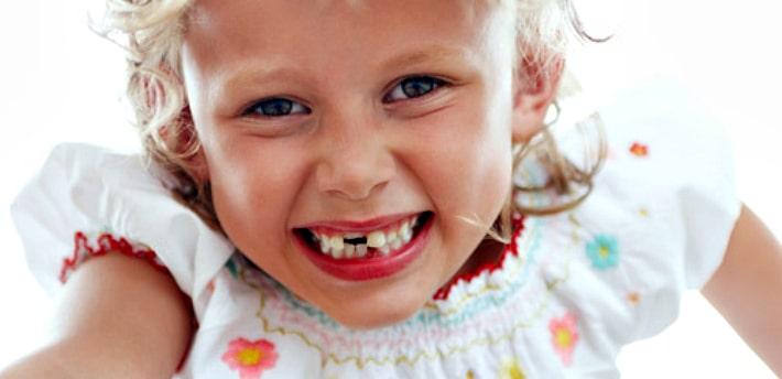 Скол зуба у ребенка