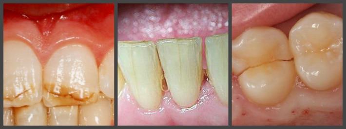 Варианты трещин на зубной эмали