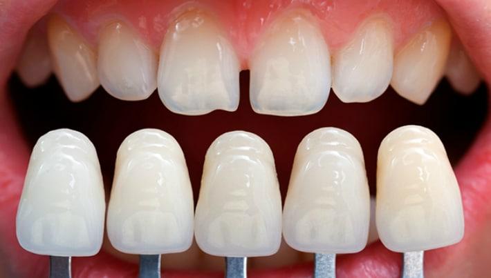 Виниры для восстановления зубов
