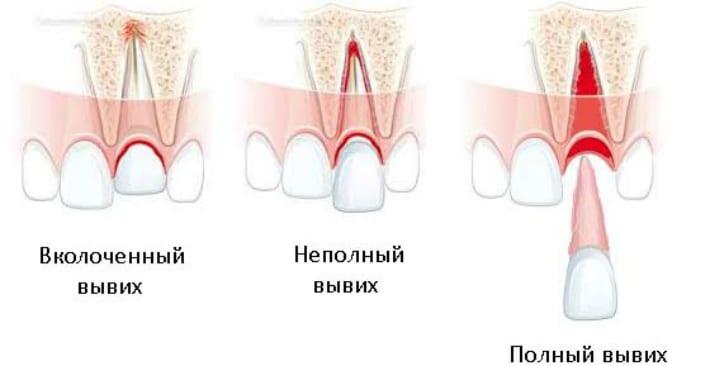 Виды вывихов зубов
