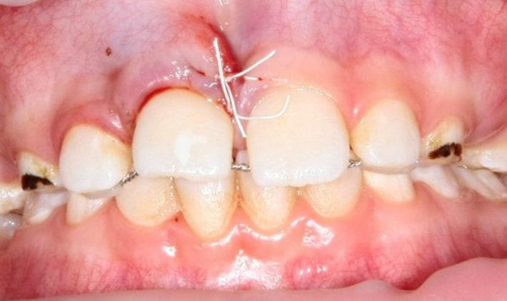 Смещение зуба из зубного ряда