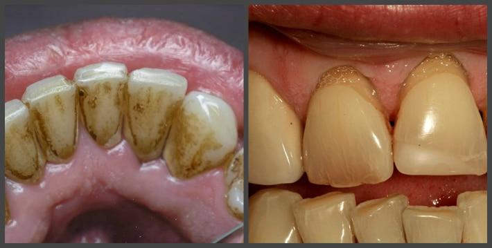 Липкая пленка на зубах