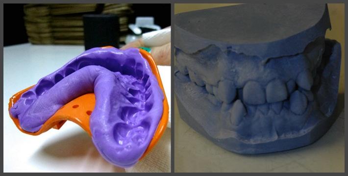 Слепок зубов для изготовления брекетов
