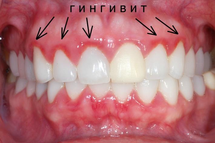 Гингивит и брекет-система