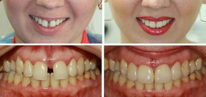 С помощью фарфоровых накладок можно скрыть пятна на зубах