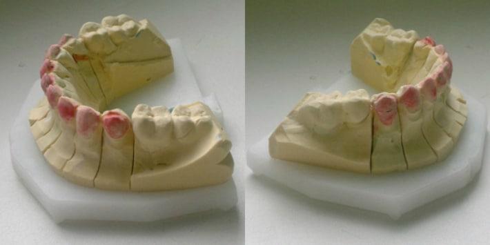 Слепок позволяет создать практически идентичный рельеф зубов