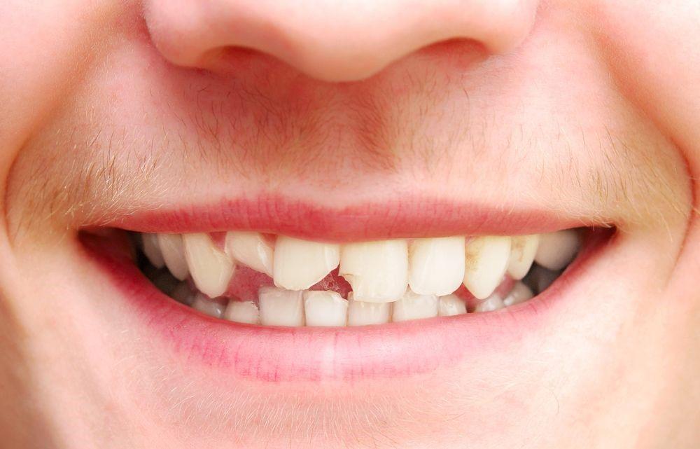 Механически поврежденные зубы