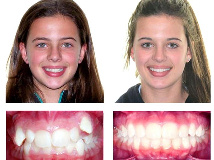Эстетический вид зубов