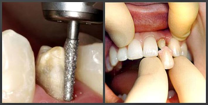 Подготовка зубов под коронку из металлокерамики