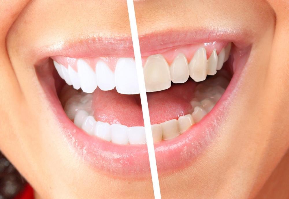 Что такое микроабразия эмали зубов и особенности метода