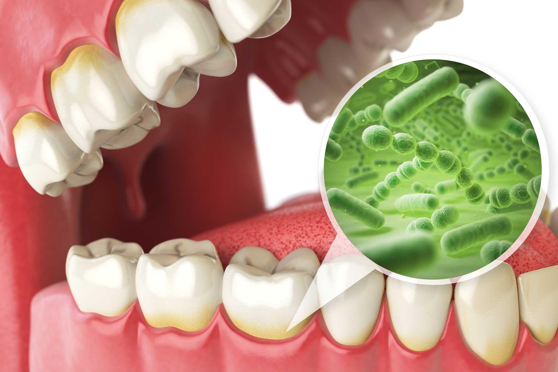 Микробы между зубами