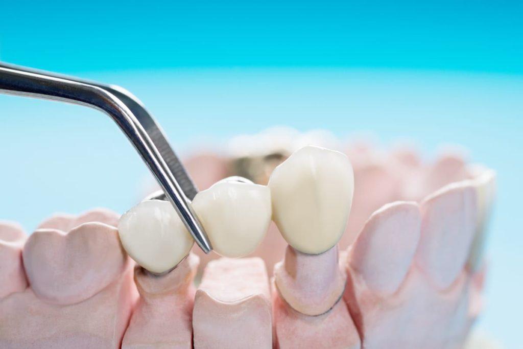 Имплантация двух зубов в ряд