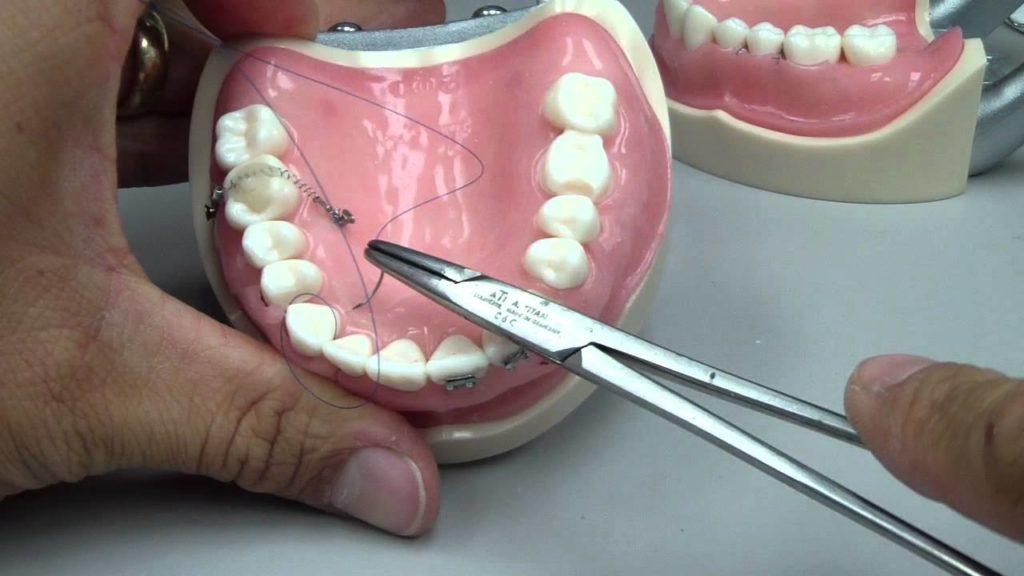 Почему швы после имплантации зубов могут расходится