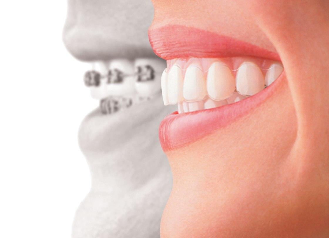 Зубы с неправильным прикусом