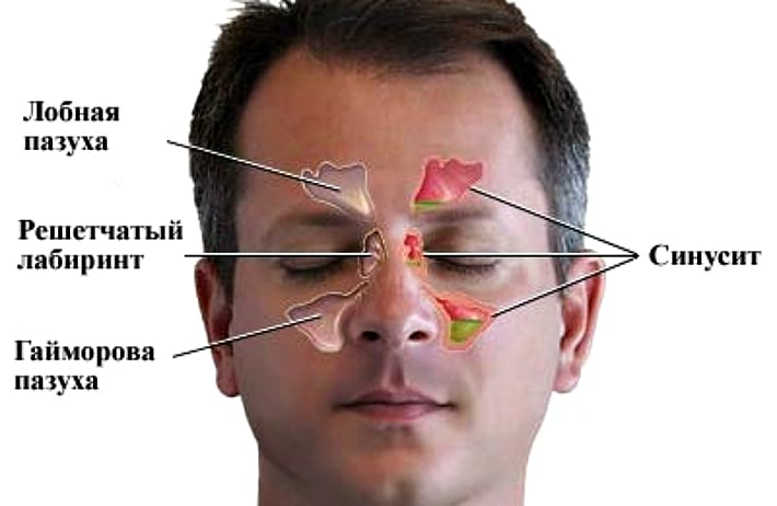 Боль в зубах и развитие синусита