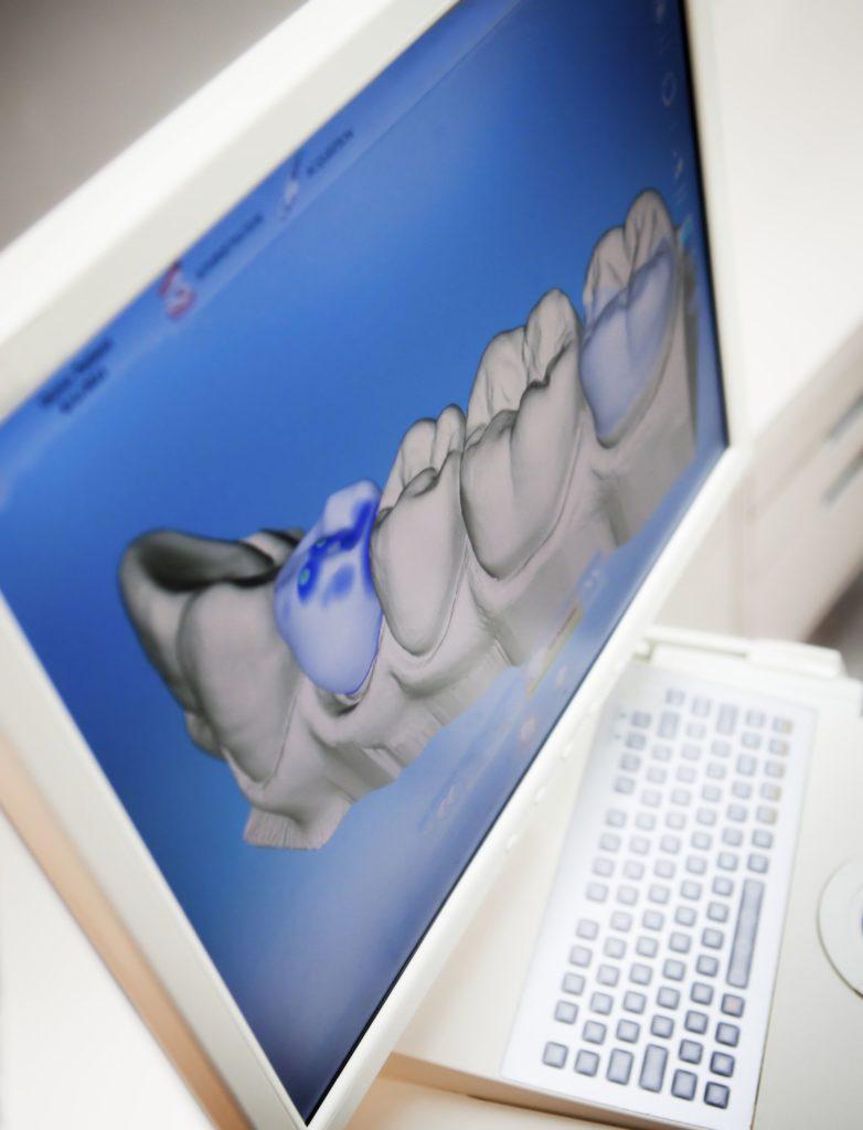 3D-имплантация зубов