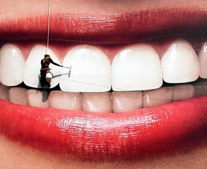 Обзор методов отбеливания зубов
