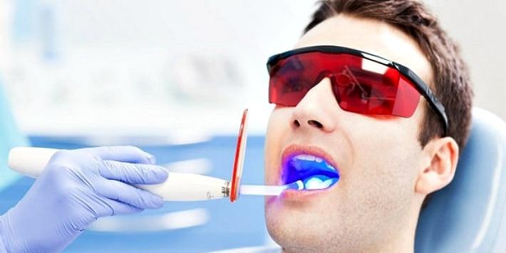 Осветления зубов про помощи лазерного отбеливания
