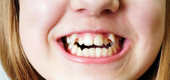 Нарушение правильности зубного ряда