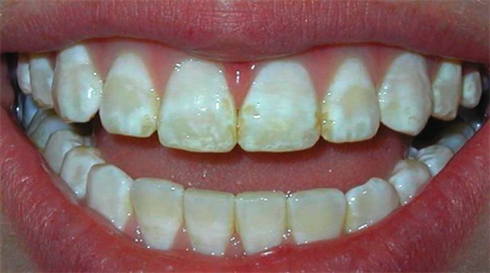 Оскомина на зубах